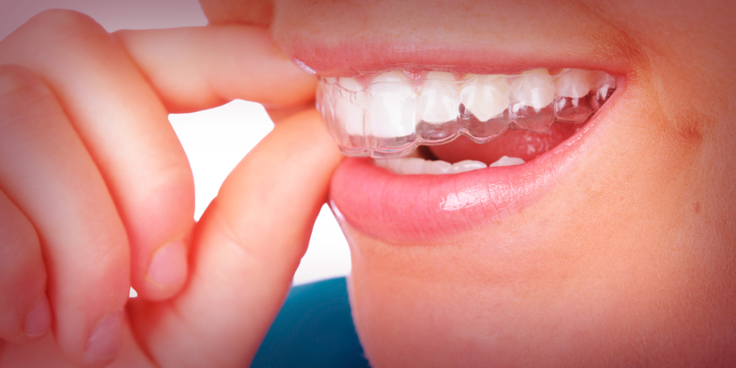 Invisalign-Smile-On-Chicago