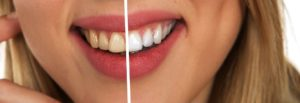 Chicagoland woman before and after dental veneer